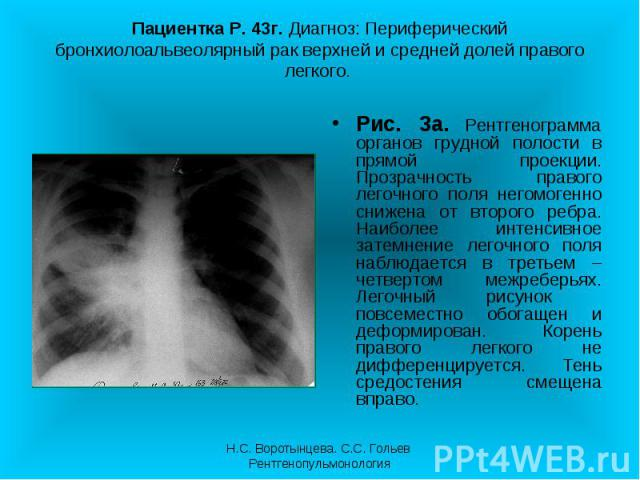 Рис. 3а. Рентгенограмма органов грудной полости в прямой проекции. Прозрачность правого легочного поля негомогенно снижена от второго ребра. Наиболее интенсивное затемнение легочного поля наблюдается в третьем – четвертом межреберьях. Легочный рисун…