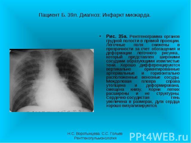 Рис. 35а. Рентгенограмма органов грудной полости в прямой проекции. Легочные поля снижены в прозрачности за счет обогащения и деформации легочного рисунка., который представлен широкими сосудами образующими извилистые тени. Хорошо дифференцируются в…