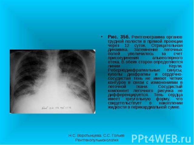 Рис. 35б. Рентгенограмма органов грудной полости в прямой проекции через 12 суток. Отрицательная динамика. Затемнение легочных полей увеличилось за счет присоединения альвеолярного отека. В обеих сторон определяются линии Керли. Ребернодиафрагмальны…