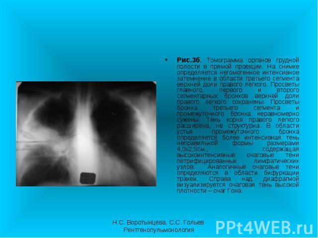 Рис.3б. Томограмма органов грудной полости в прямой проекции. На снимке определяется негомогенное интенсивное затемнение в области третьего сегмента верхней доли правого легкого. Просветы главного, первого и второго сегментарных бронхов верхней доли…
