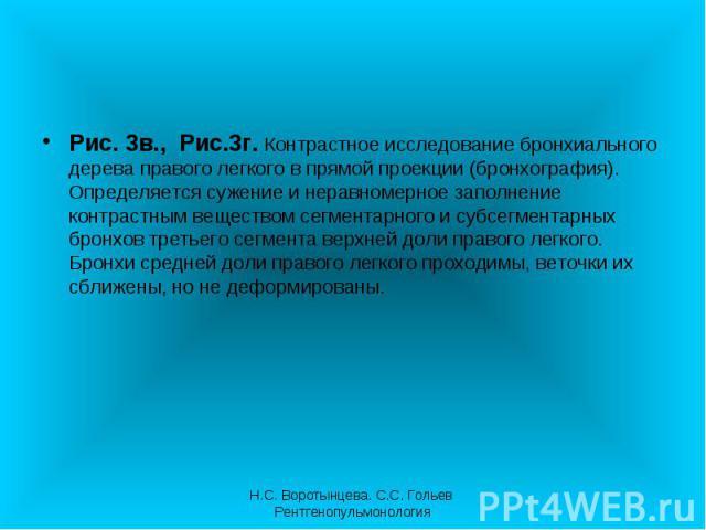 Рис. 3в., Рис.3г. Контрастное исследование бронхиального дерева правого легкого в прямой проекции (бронхография). Определяется сужение и неравномерное заполнение контрастным веществом сегментарного и субсегментарных бронхов третьего сегмента верхней…