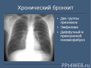 Две группы признаков: Две группы признаков: Эмфизема Диффузный и прикорневой пне