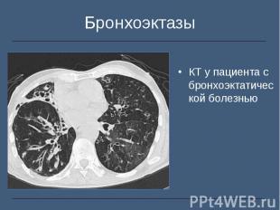 КТ у пациента с бронхоэктатической болезнью КТ у пациента с бронхоэктатической б