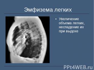 Увеличение объема легких, неспадение их при выдохе Увеличение объема легких, нес