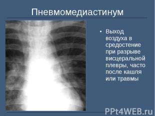 Выход воздуха в средостение при разрыве висцеральной плевры, часто после кашля и