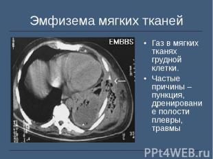 Газ в мягких тканях грудной клетки. Газ в мягких тканях грудной клетки. Частые п