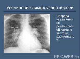 Природа увеличения по рентгеновской картине часто не распознаётся Природа увелич