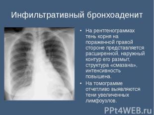 На рентгенограммах тень корня на пораженной правой стороне представляется расшир