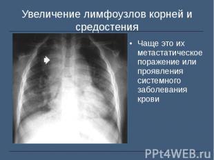Чаще это их метастатическое поражение или проявления системного заболевания кров