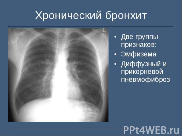 Две группы признаков: Две группы признаков: Эмфизема Диффузный и прикорневой пневмофиброз
