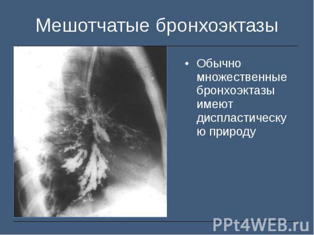 Обычно множественные бронхоэктазы имеют диспластическую природу Обычно множественные бронхоэктазы имеют диспластическую природу