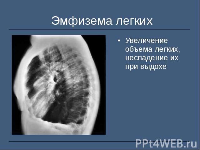 Увеличение объема легких, неспадение их при выдохе Увеличение объема легких, неспадение их при выдохе