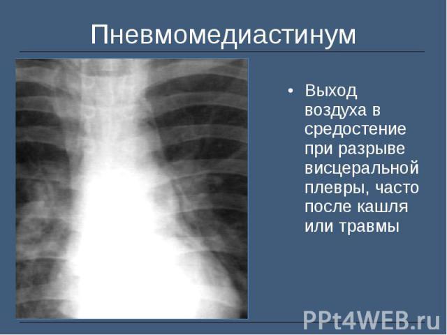 Выход воздуха в средостение при разрыве висцеральной плевры, часто после кашля или травмы Выход воздуха в средостение при разрыве висцеральной плевры, часто после кашля или травмы