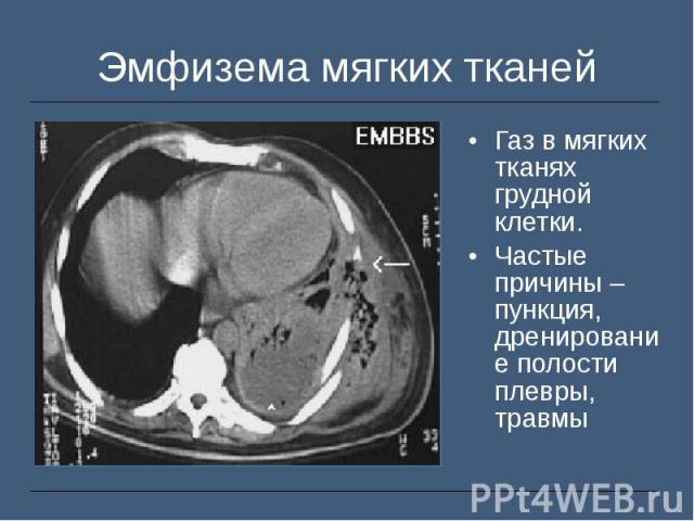 Газ в мягких тканях грудной клетки. Газ в мягких тканях грудной клетки. Частые причины – пункция, дренирование полости плевры, травмы