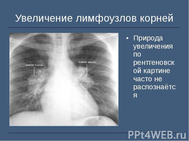 Природа увеличения по рентгеновской картине часто не распознаётся Природа увеличения по рентгеновской картине часто не распознаётся