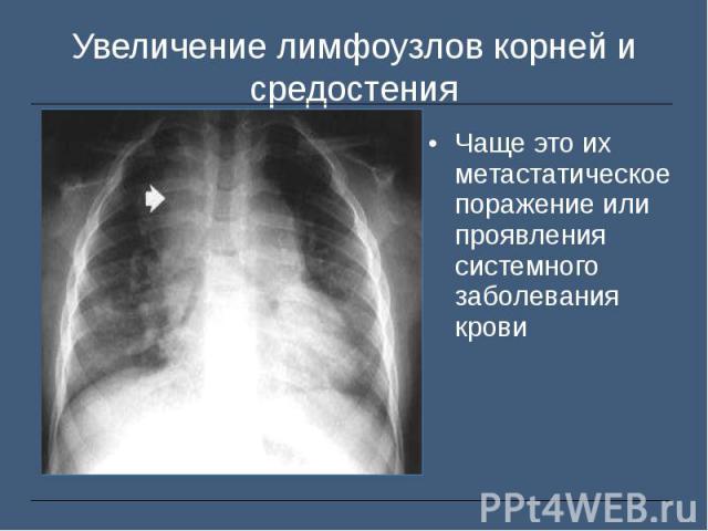 Чаще это их метастатическое поражение или проявления системного заболевания крови Чаще это их метастатическое поражение или проявления системного заболевания крови