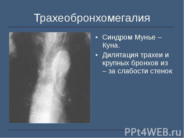 Синдром Мунье – Куна. Синдром Мунье – Куна. Дилятация трахеи и крупных бронхов из – за слабости стенок