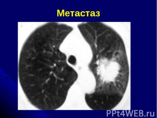 Метастаз