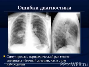 Ошибки диагностики Симулировать периферический рак может аневризма лёгочной арте