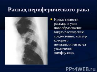 Распад периферического рака Кроме полости распада в узле новообразования видно р