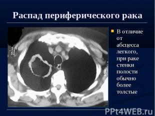 Распад периферического рака В отличие от абсцесса легкого, при раке стенки полос