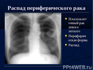 Распад периферического рака Плоскоклеточный рак левого легкого Периферическая фо