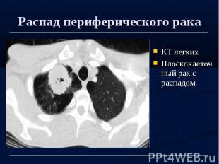 Распад периферического рака КТ легких Плоскоклеточный рак с распадом