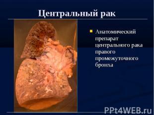 Центральный рак Анатомический препарат центрального рака правого промежуточного
