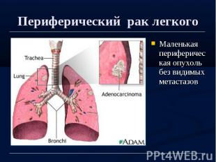 Периферический рак легкого Маленькая периферическая опухоль без видимых метастаз