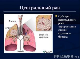 Центральный рак Субстрат центрального рака -прорастание стенки крупного бронха