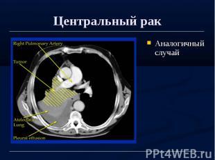 Центральный рак Аналогичный случай