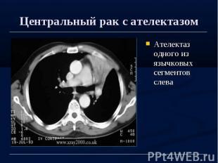 Центральный рак с ателектазом Ателектаз одного из язычковых сегментов слева