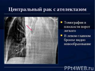 Центральный рак с ателектазом Томография в плоскости ворот легкого В левом главн