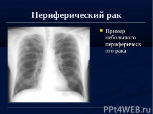 Периферический рак Пример небольшого периферического рака