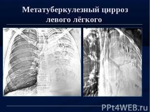Метатуберкулезный цирроз левого лёгкого