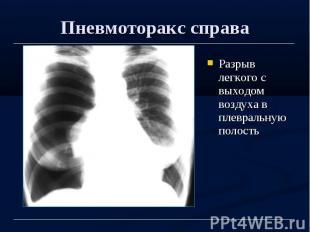 Пневмоторакс справа Разрыв легкого с выходом воздуха в плевральную полость