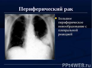 Периферический рак Большое периферическое новообразование с плевральной реакцией