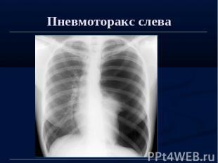 Пневмоторакс слева