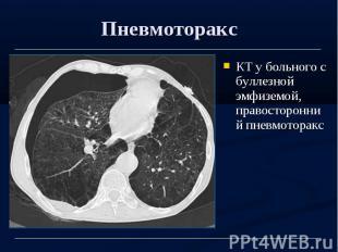 Пневмоторакс КТ у больного с буллезной эмфиземой, правосторонний пневмоторакс