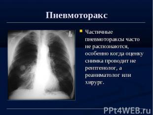 Пневмоторакс Частичные пневмотораксы часто не распознаются, особенно когда оценк
