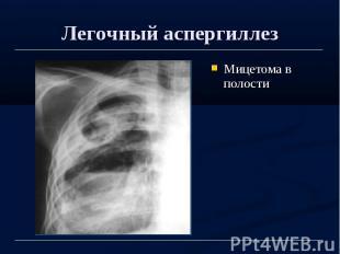 Легочный аспергиллез Мицетома в полости