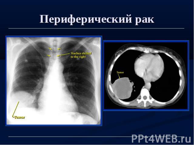 Периферический рак