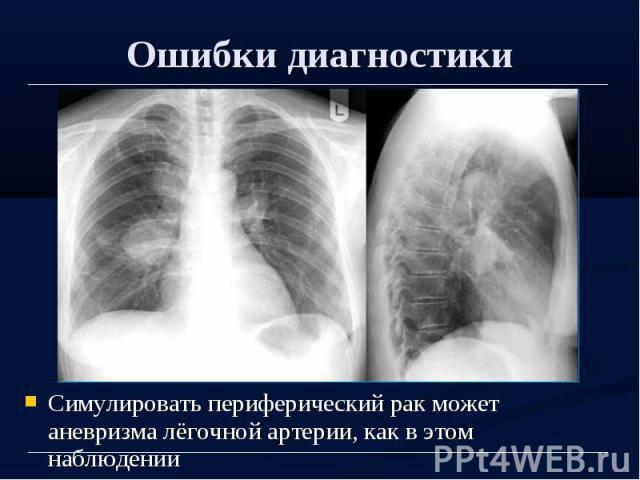 Ошибки диагностики Симулировать периферический рак может аневризма лёгочной артерии, как в этом наблюдении