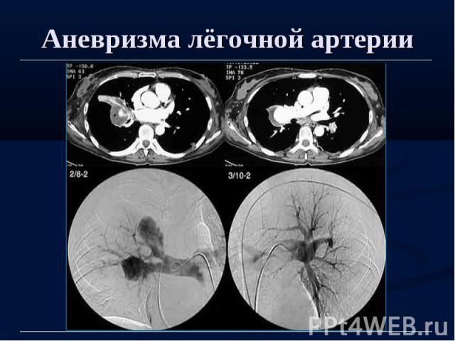Аневризма лёгочной артерии