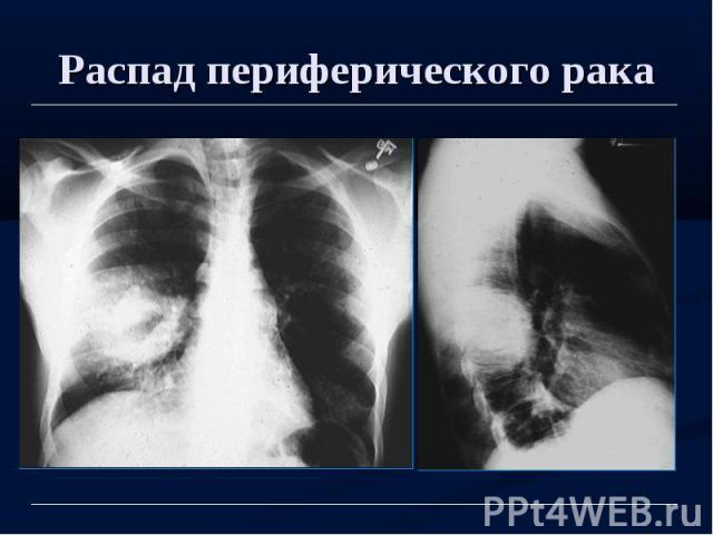 Распад периферического рака