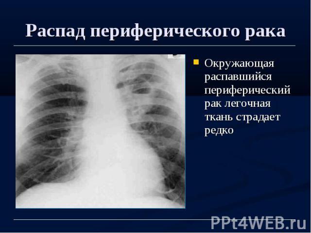 Распад периферического рака Окружающая распавшийся периферический рак легочная ткань страдает редко