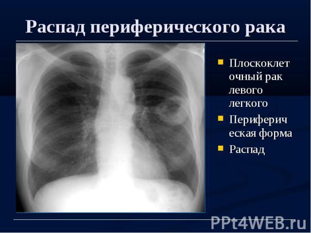 Распад периферического рака Плоскоклеточный рак левого легкого Периферическая форма Распад