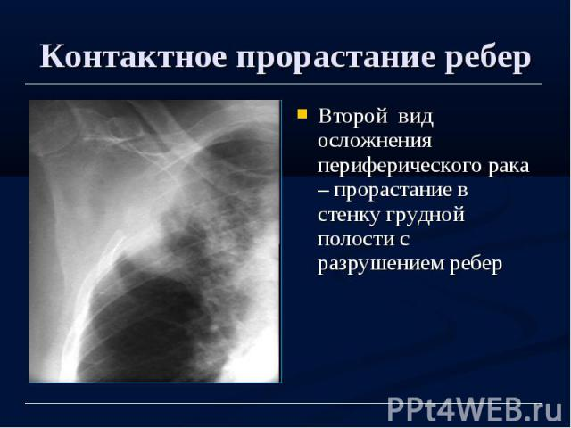 Контактное прорастание ребер Второй вид осложнения периферического рака – прорастание в стенку грудной полости с разрушением ребер