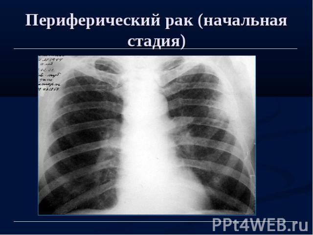 Периферический рак (начальная стадия)