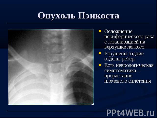 Опухоль Пэнкоста Осложнение периферического рака с локализацией на верхушке легкого. Рзрушены задние отделы ребер. Есть неврологическая симптоматика – прорастание плечевого сплетения